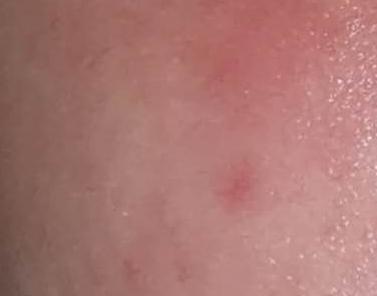 脸皮肤过敏发红怎么办?如何快速退红?