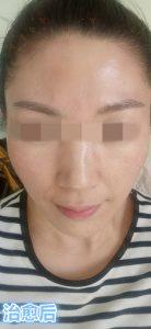 激素脸症状初期图片治愈过程记录   赵桂荣中医门诊部