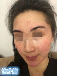 赵桂荣门诊 :对症治疗红血丝、敏感肌肤、激素依赖性皮炎