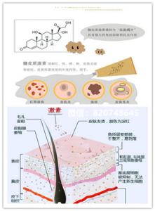 敷面膜激素脸的红肿冒痘、干燥疼痒热应该怎么办?