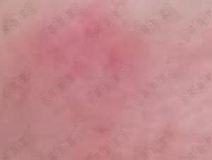 激素脸能用防晒霜吗?激素脸如何防晒?