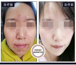 激素依赖性皮炎案例:为什么有人治疗激素脸症状会不断加重?