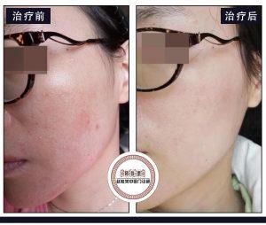 激素依赖性皮炎治愈案例:毛孔粗大、面部潮红、干燥脱皮、逆光疹子治疗方法