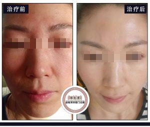 激素化妆品、激素面膜、激素药膏导致的激素脸可以治愈吗?