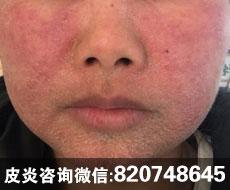 面部激素依赖性皮炎出现结痂症状怎么办?