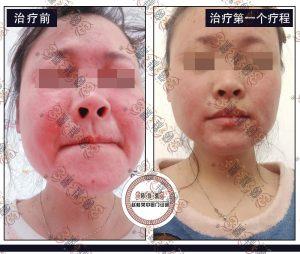 面部激素依赖性皮炎治疗疗程观察