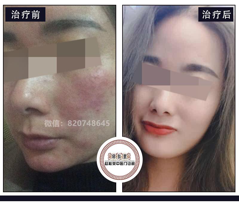 您不知道的激素脸护理方法 学会这些,皮肤恢复的更快、更漂亮!