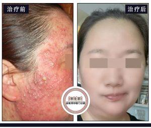 激素脸症状爆发顺序,千万不要错过激素脸治疗的zui佳时间!