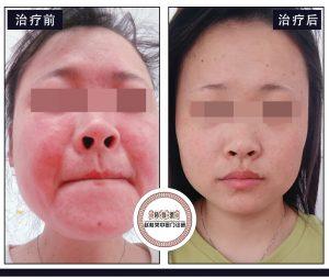 脸过敏发红痒怎么办?30天告别这种面部激素过敏性皮炎!