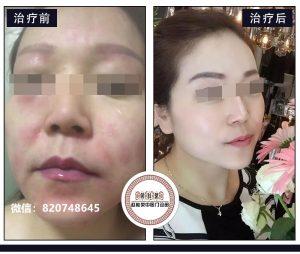 面部激素依赖性皮炎的症状有哪些?怎么确诊,怎么治疗,激素脸排毒治疗能好吗?