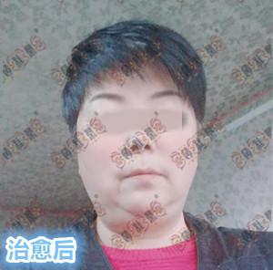 赵桂荣门诊:面部激素依赖性皮炎治疗疗程案例