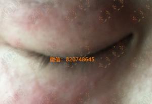 眼睛周围皮肤红肿的激素过敏性皮炎怎么办?