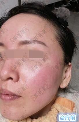 油性皮肤激素依赖性皮炎患者脸发干该如何护理