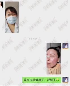 赵桂荣中医门诊部:面部激素依赖性皮炎治疗5个疗程后