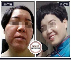 您看她激素脸治好后的样子像几岁?