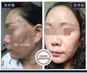 赵桂荣激素依赖性皮炎专家给激素脸患者的几点建议