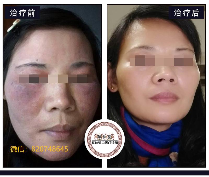 化妆品皮炎和化妆品激素脸的区别?如何辨别激素化妆品?