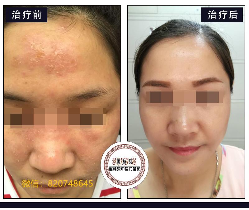 裸脸治疗激素依赖性皮炎有效吗