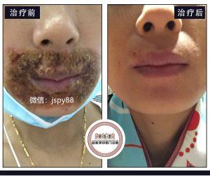 皮肤不好的人有多自卑!56%的脸部过敏长痘痘是因为激素脸!