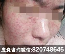 化妆品过敏性激素依赖性皮炎是怎么回事?如何治疗?