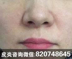 激素脸初期症状表现【有图片有案例】