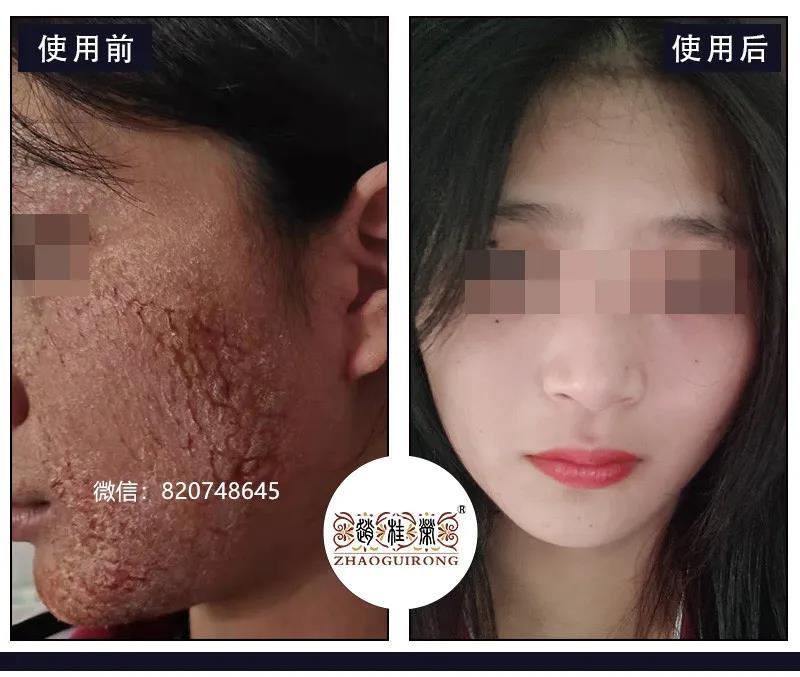激素依赖性皮炎患者自述:感谢在激素脸最痛苦的时候遇见赵桂荣门诊