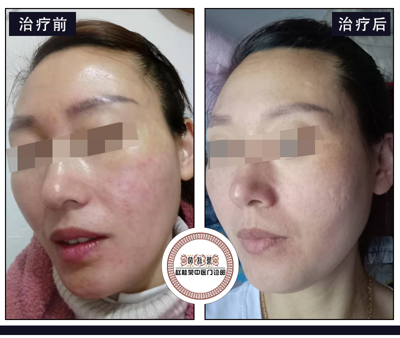 激素脸过敏治愈案例:脸不过敏了,皮肤没有任何不舒服!