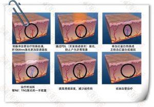 激光祛除红血丝的原理,激素脸红血丝可以用激光吗?