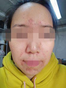 李女士激素脸治疗前