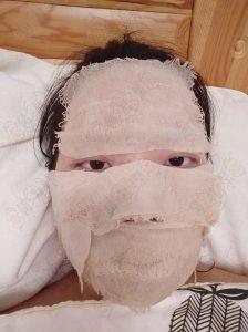 李女士激素脸治疗中