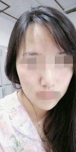 李女士激素脸治疗后