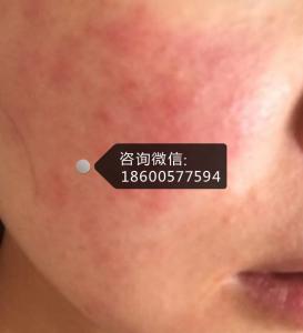 夏季护肤:面部激素依赖性皮炎皮肤该如何防晒?