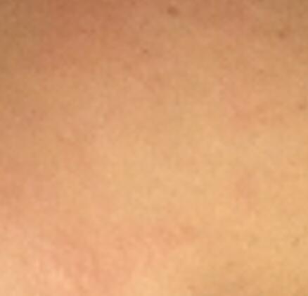 抹了一种药膏,女子皮肤不排汗,晚上脸痒,还患上激素脸!很多人在用