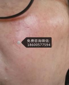 脸部过敏红痒激素脸可以擦红霉素软膏吗?