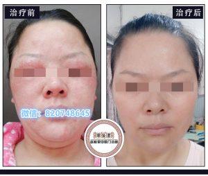 敷面膜激素脸过敏,用丹皮酚软膏可以吗?