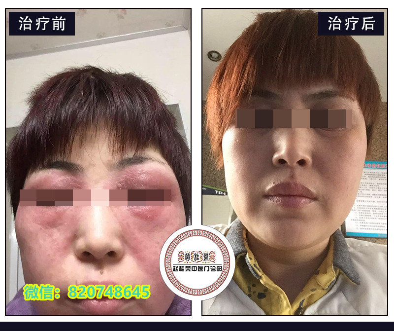 眼睛周围红肿发痒、脂肪粒,是护肤品过敏?麦粒肿?还是激素皮炎?