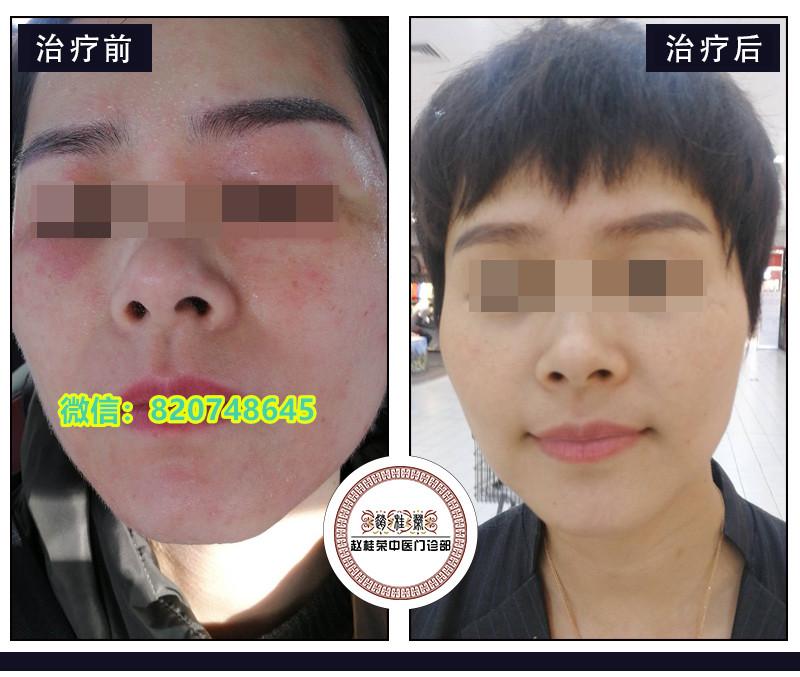 口耳相传的激素脸治疗方法