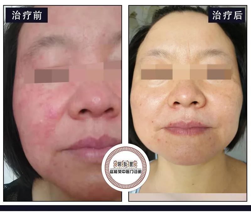 面部激素依赖性皮炎治疗案例:怎样做才能治好激素依赖性皮炎