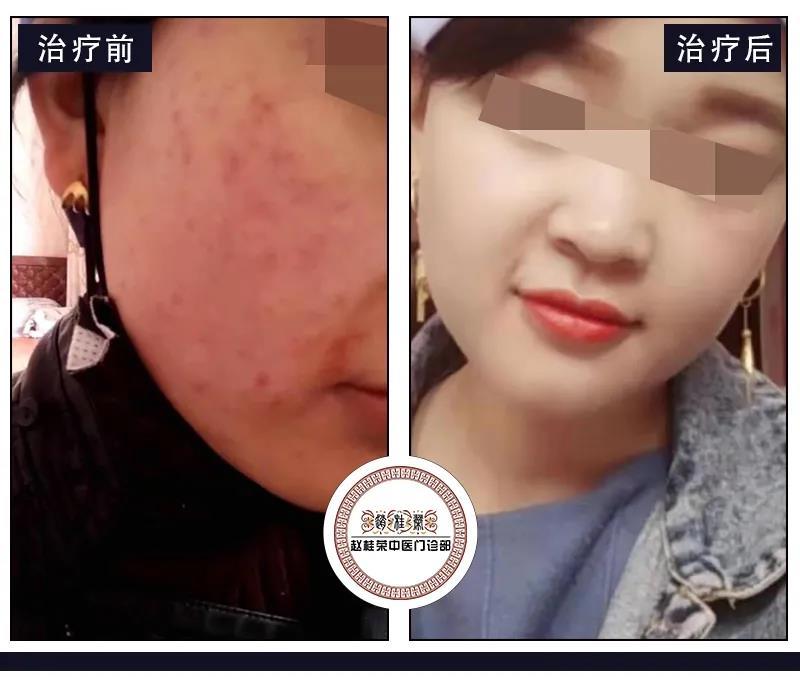 用激素化妆品一年多,得了激素依赖性皮炎脸上汗毛越来越多怎么办