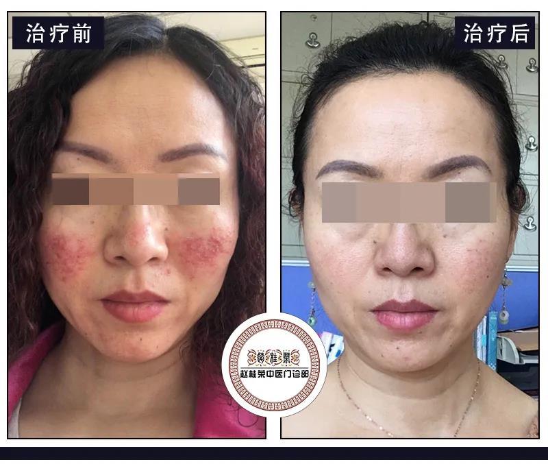激素脸患者什么时候才能自由化妆?