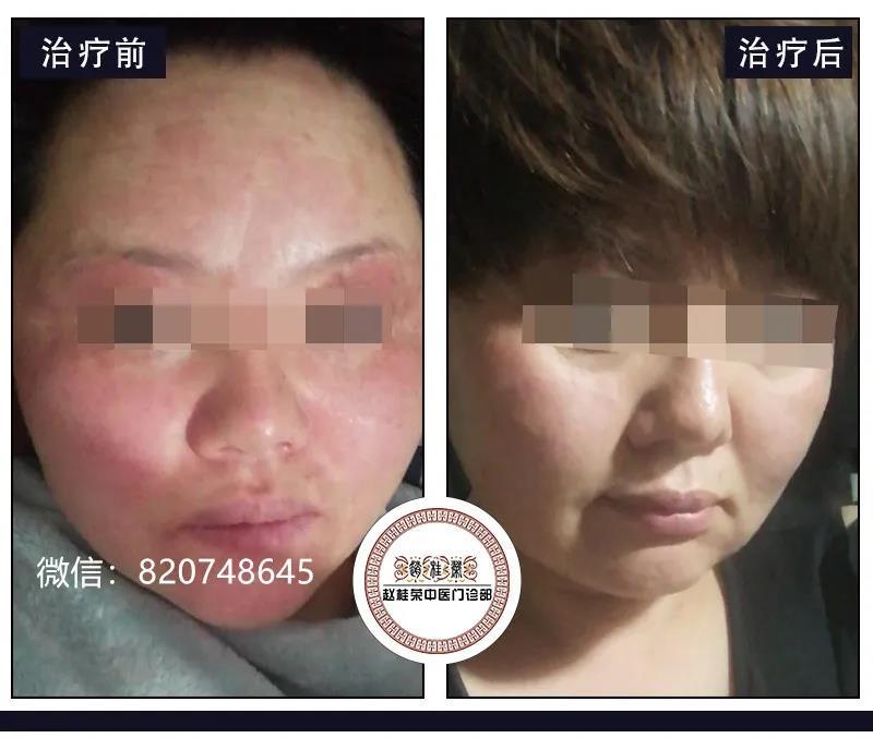 激素药膏给皮肤带来无数伤害,激素脸早了解早受益!