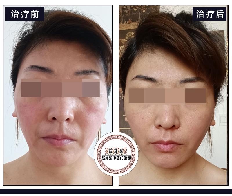 这三种激素脸治疗方法,您用过哪一种?