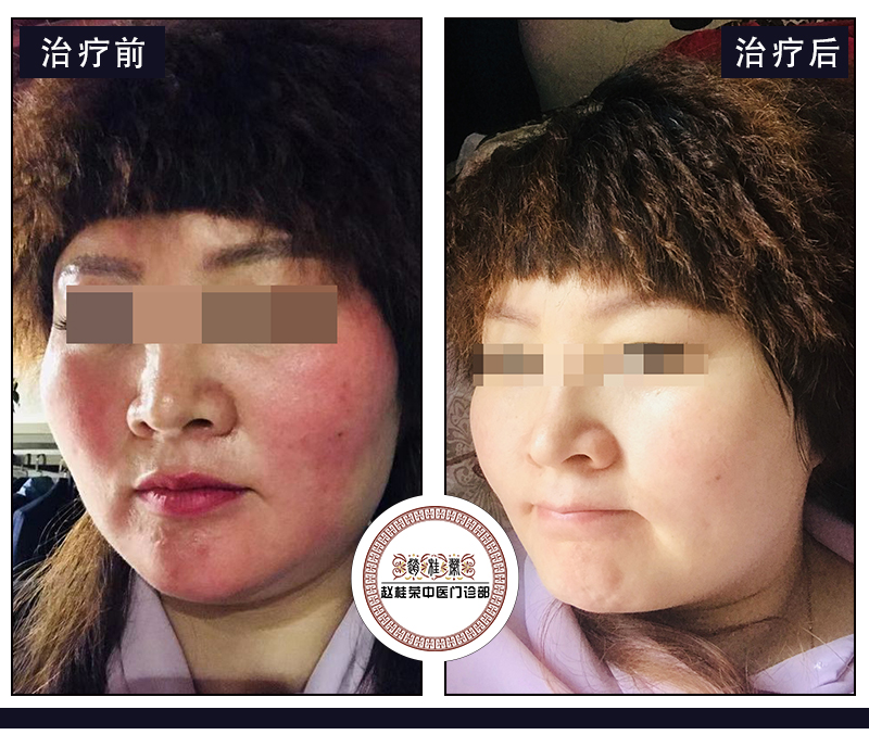 皮肤屏障受损和激素依赖性皮炎有什么关系?