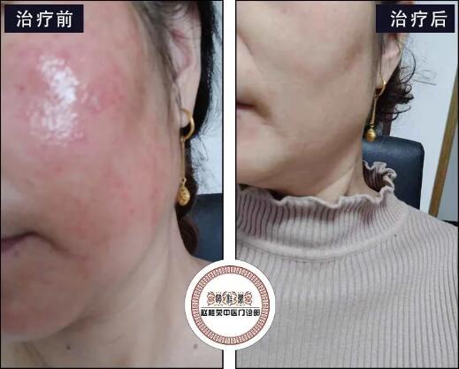 皮肤表层症状消失了,是否代表着激素皮炎已经痊愈了?