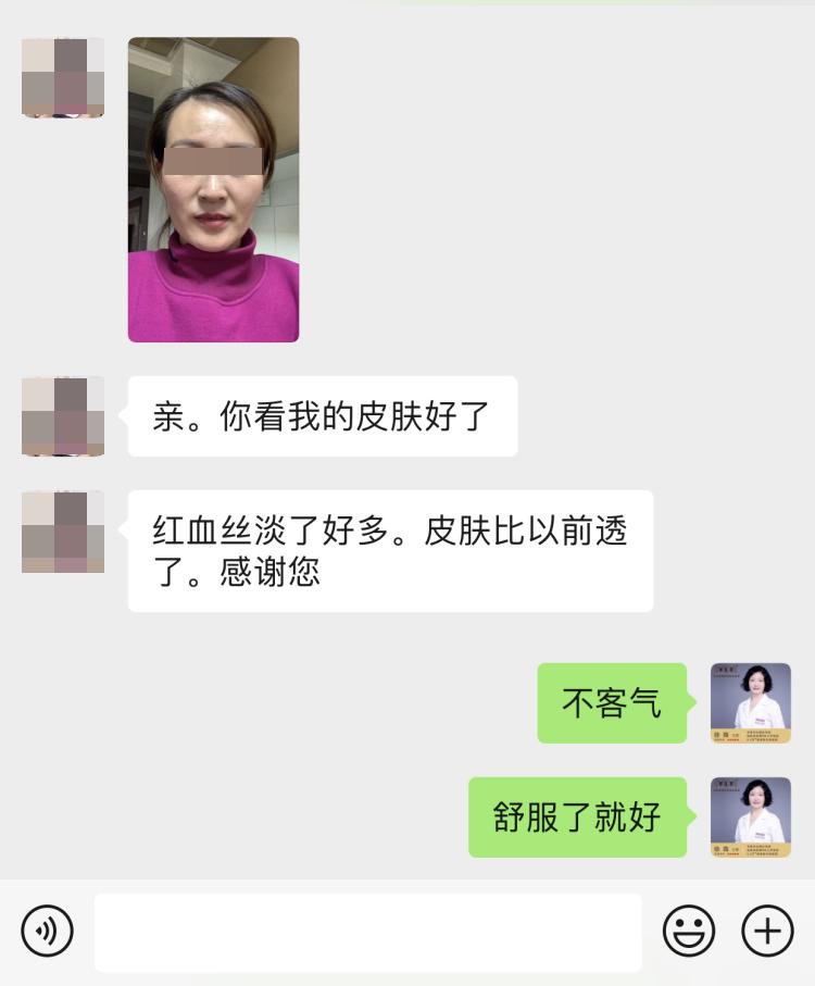 临近春节,愿你也能像她一样治愈激素脸,开心过新年