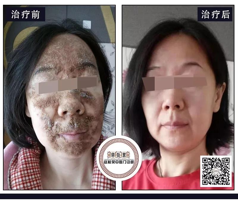 重度激素脸流水结痂,皮肤还能重回健康吗
